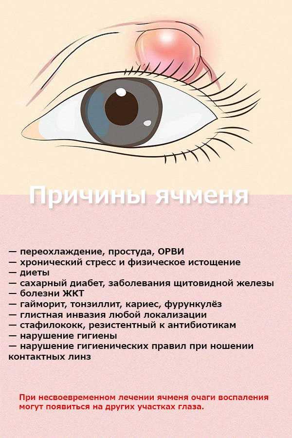 Причины ячменя